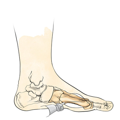 foot-medical-intervention3-jpg